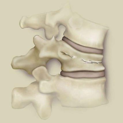 Болит кости позвоночник руки ноги от чего может быть thumbnail