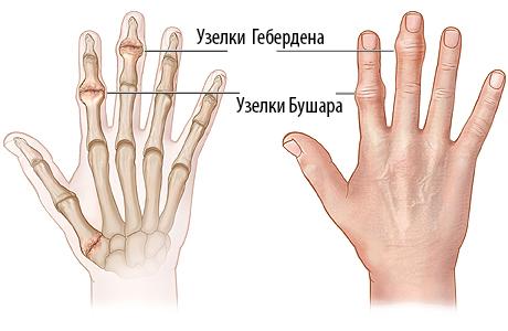 Боли в суставах пальцев рук боль в плечевом суставе что делать