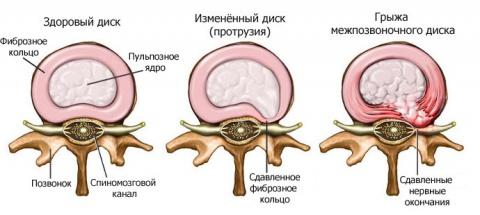 Межпозвонковая грыжа диска шейного отдела позвоночника