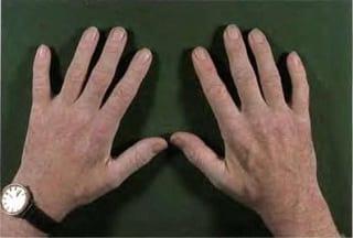 Онемение рук при сахарном диабете что делать